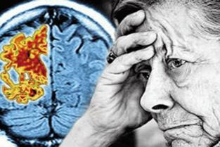 活性肽——老年痴呆的福利