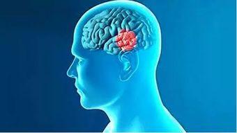 小分子肽辅治帕金森病症的食品