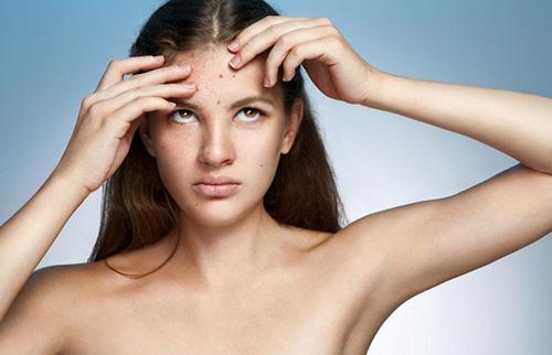 小分子肽,如何保证长痘少女的皮肤?